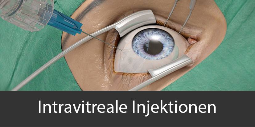 Intravitreale Injektion